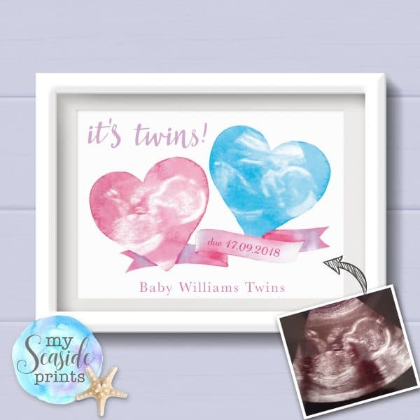 Twin Baby Scan